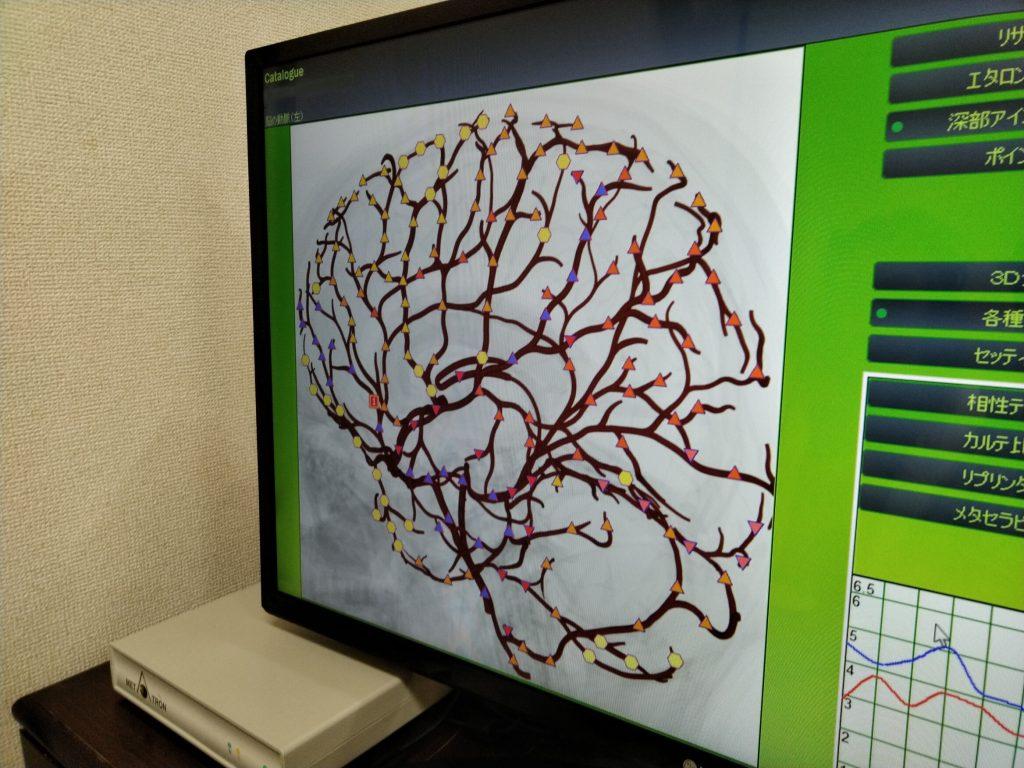 脳の状態1