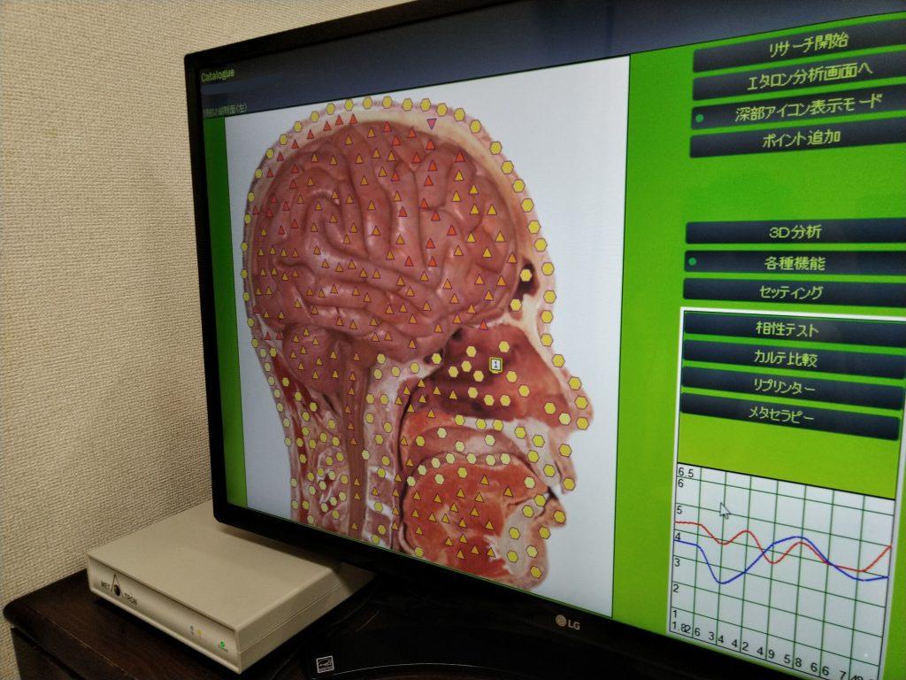 脳の状態2